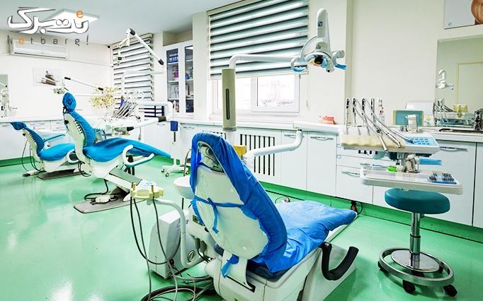 ترمیم سطحی دندان در مطب دکتر رضائی