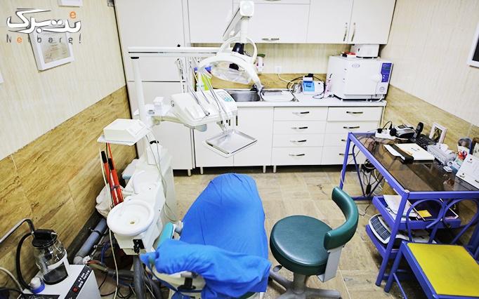 بلیچینگ دندان در مطب دکتر عزیزی