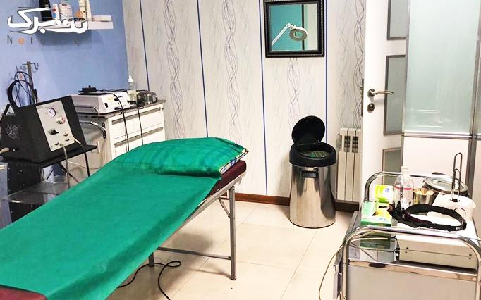میکرودرم ابریژن در مطب دکتر قره داغی