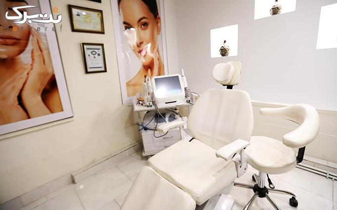 میکرونیدلینگ پوست در مطب دکتر پرتوی نژاد