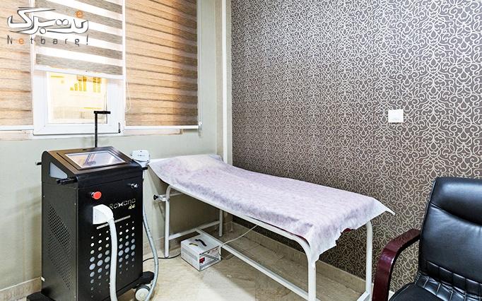 الکساندرایت 2017 در مطب دکتر بهشتی