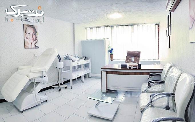 لیزر دایود در مطب دکتر سعادت