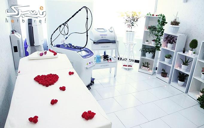 لیزر دایود ویژه زیر بغل در مطب دکتر سعادت