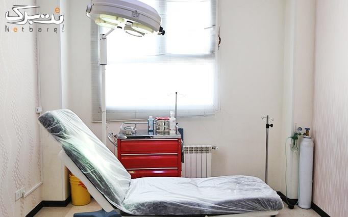 دستمزد تزریق بوتاکس مسپورت در مطب دکتر آقامیری