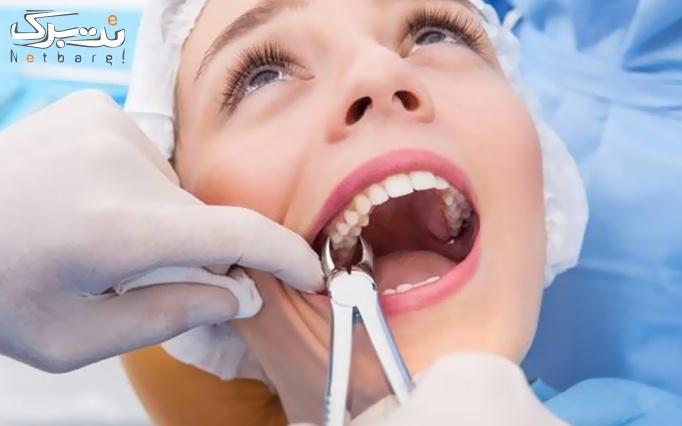 جرم گیری و بروساژ دندان در کلینیک دندانپزشکی معلم