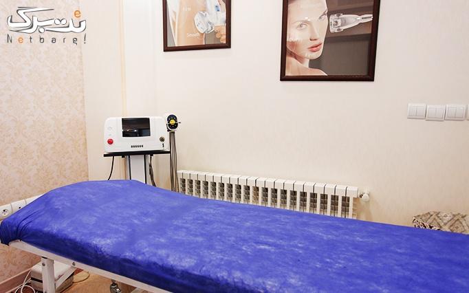 لیزر الکساندرایت در مطب دکتر بوجاری