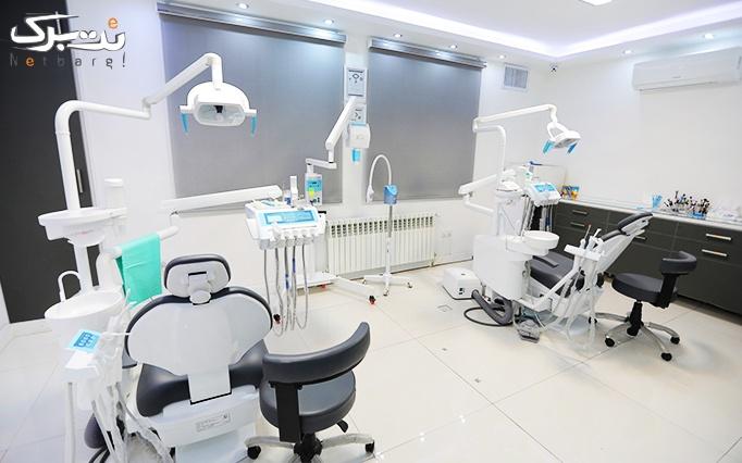 کامپوزیت دندان در مطب دکتر داریوش شیروانی