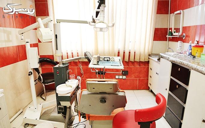 جرمگیری و بروساژ دندان در مطب دکتر علیرضا لباف
