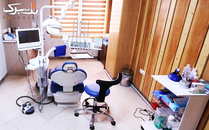 جرمگیری و بروساژ در مطب دکتر خلف