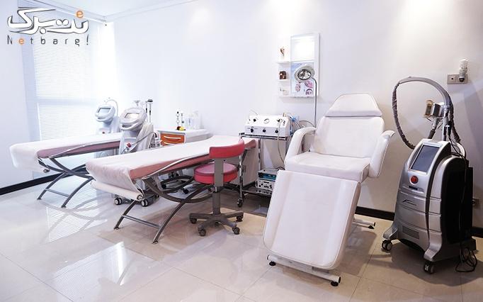مزوتراپی در مطب دکتر خلجی