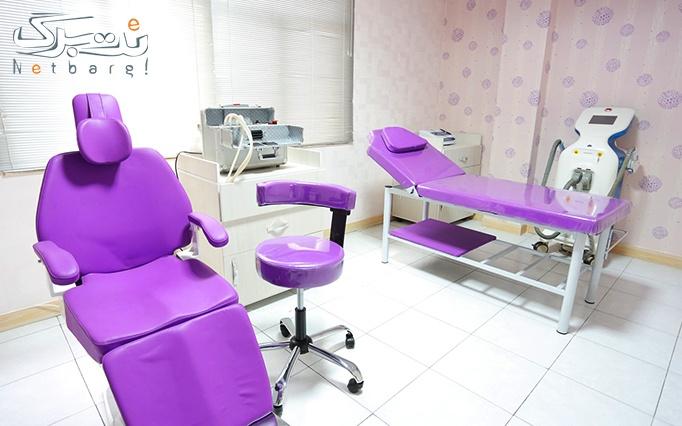 لیزر موهای زائد SHR در مطب دکتر تبسم
