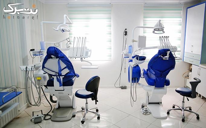 جرمگیری دندان و بروساژ در مطب دکتر خداداد
