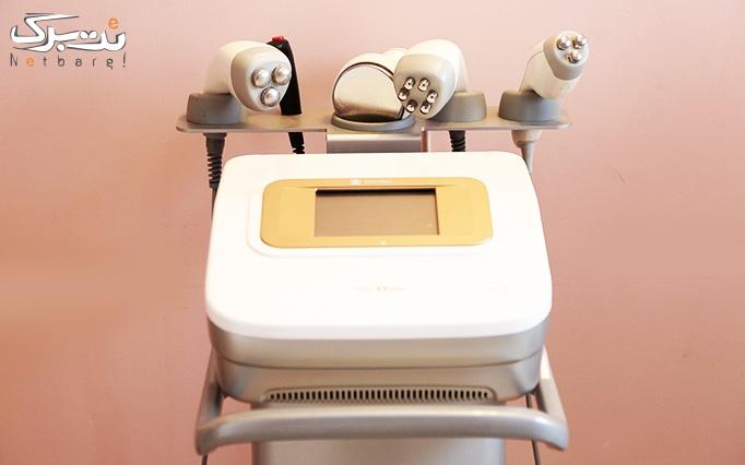 کربوکسی تراپی در مطب دکتر امری