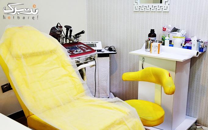 لیزر موهای زائد SHR در مطب دکتر جعفری