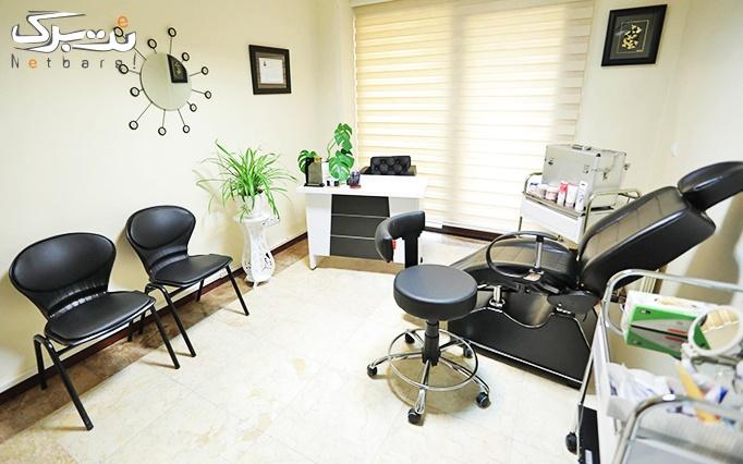 لیزر الکساندرایت کندلا در مطب دکتر رضائی