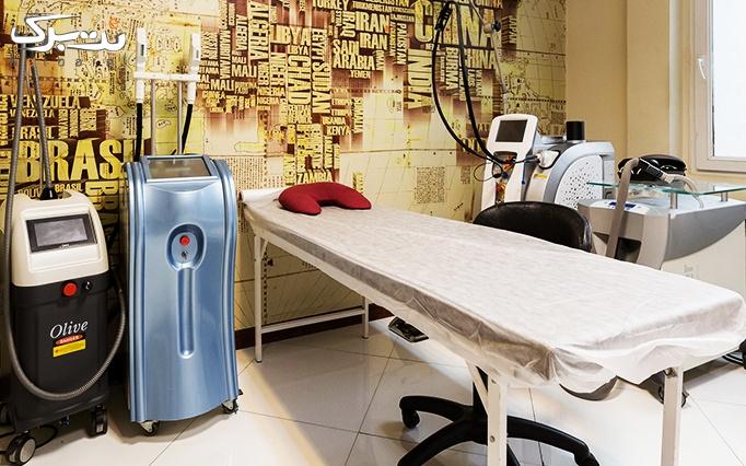 لیزر الکساندرایت در مطب دکتر حسنی