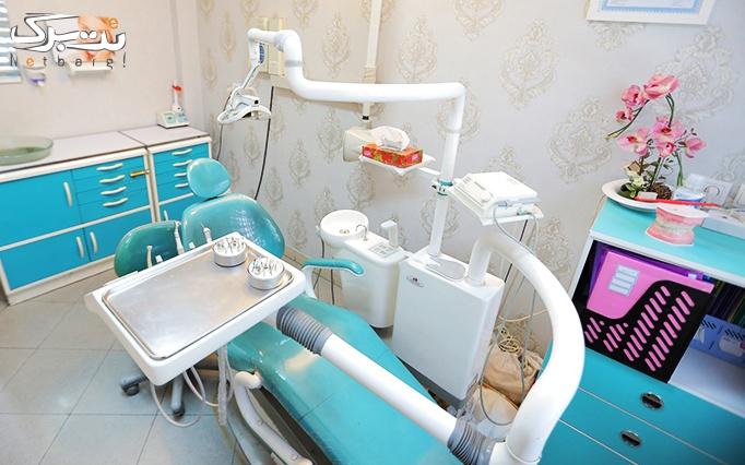جرمگیری دندان و بروساژ دندان در مطب دکتر عزیزی