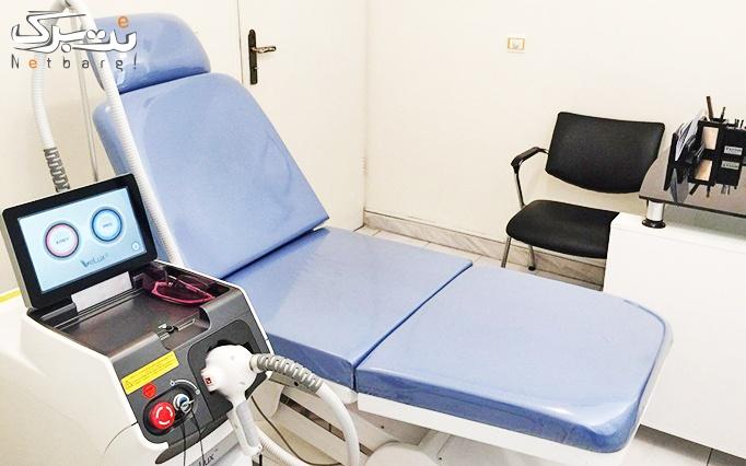 لیزر موهای زائد در مطب خانم دکتر ساناز معینی