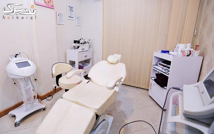 لیزر موهای زائد با الکساندرایت در مطب دکتر خسروی