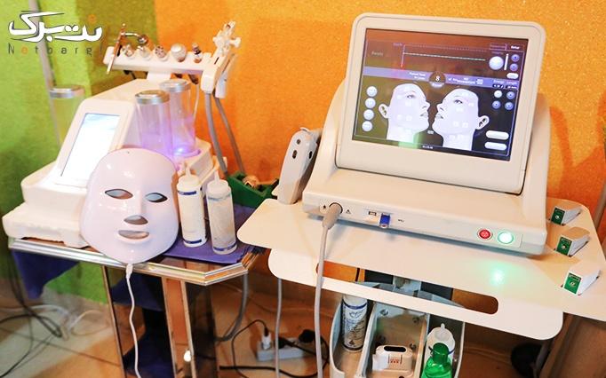 لیزر موهای زائد با الکساندرایت در مطب دکتر فروزانی