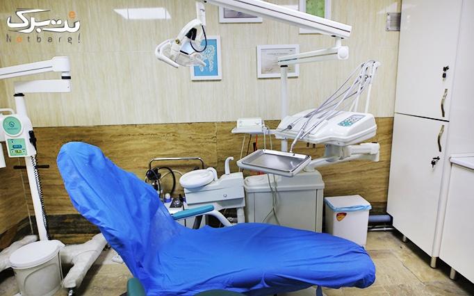 جرم گیری و بروساژ دندان دکتر عزیزی