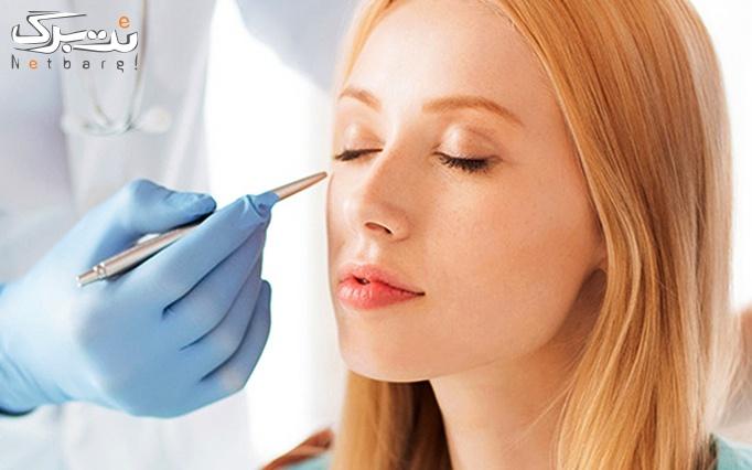 درمان افتادگی پلک با پلاسماجت دکتر رادین مهر