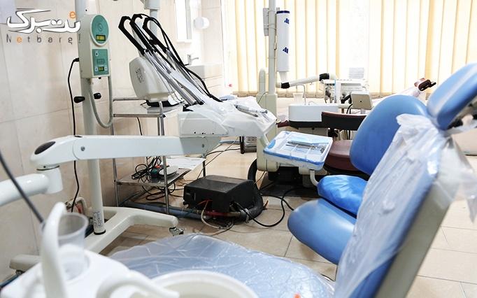 عصب کشی دندان تک کانال در مطب دکتر فاطمه عبدی