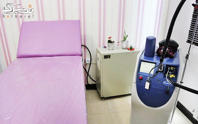 لیزر موهای زائد با الکساندرایت در مطب دکتر هرویان