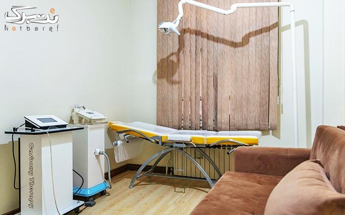 لیزر موهای زائد با دایود الکس در مطب دکتر جعفری