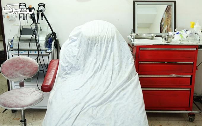 لیزر موهای زائد با SHR در مطب دکتر وطن خواه