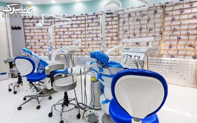 جرمگیری و بروساژ دندان و کاشت نگین توسط دکتر شکرچی