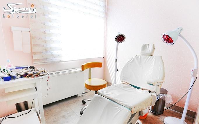 لیزر موهای زائد با الکساندرایت در مطب دکتر سلیمانی