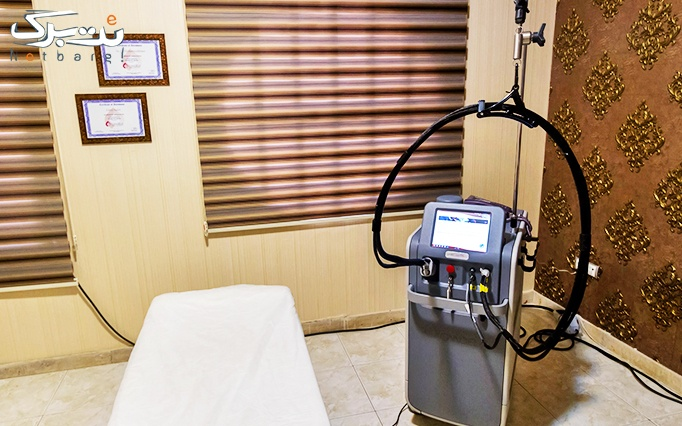 لیزر موهای زائد با الکساندرایت در درمانگاه کایا
