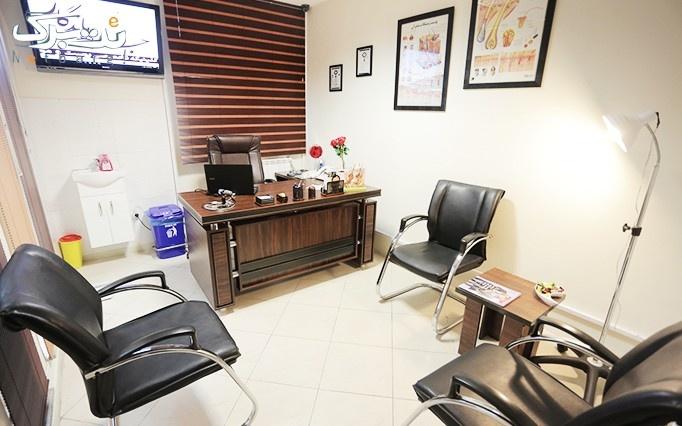 لیزر موهای زائد در درمانگاه تخصصی جلوه ماندگار
