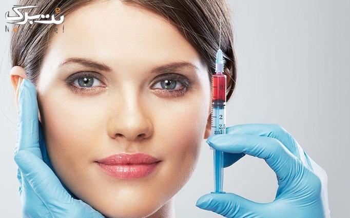 تزریق ژل در مطب دکتر جهانگیری