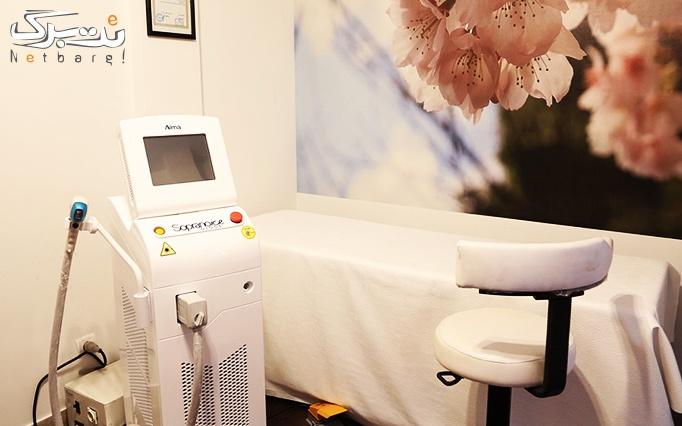لیزر موهای زائد الکساندرایت در مطب دکتر پوراکبری