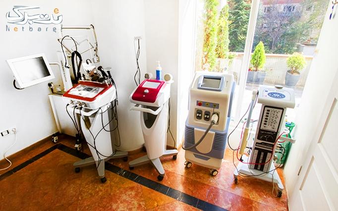 لاغری با دستگاه LPG در مطب دکتر مهران