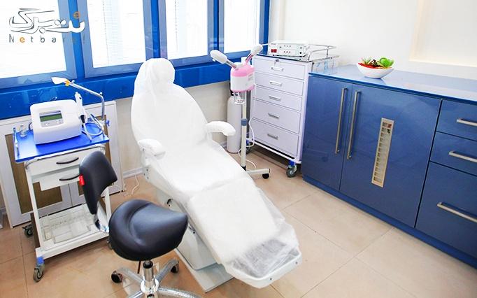 لیزر موهای زائد با دایود در مطب دکتر ماهانی