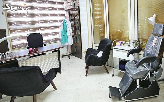 لیزر موهای زائد الکساندرایت در مطب دکتر بلورچی