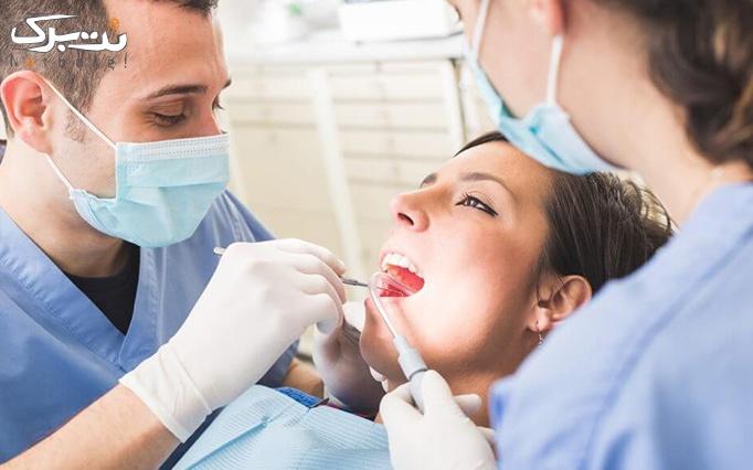 جرم گیری و بروساژ دندان توسط دکتر عباسی