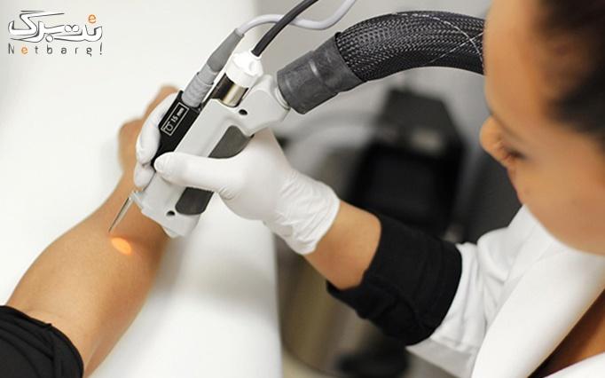 لیزر موهای زائد نواحی بدن در مطب دکتر صالحی