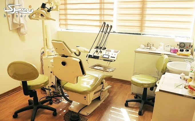 پرکردن دندان با کامپوزیت در درمانگاه هدایت