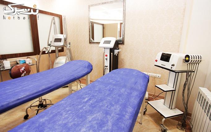 میکرودرم در مطب دکتر بوجاری