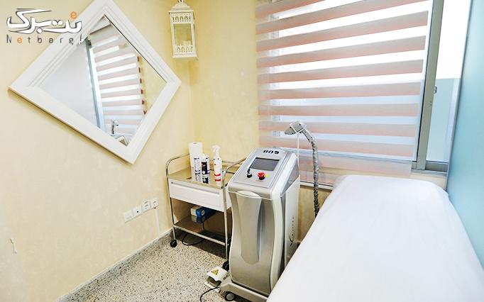 میکرونیدلینگ پوست در مطب دکتر دلیر
