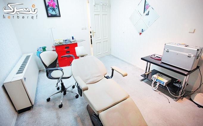 پلاسما جت در مطب دکتر خاکپور