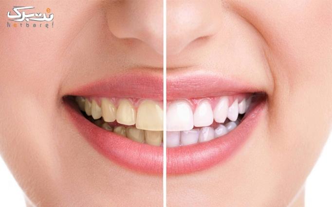 جرم گیری و بروساژ دندان توسط دکتر لشگری