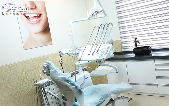 خدمات دندانپزشکی توسط خانم دکتر ایرانی