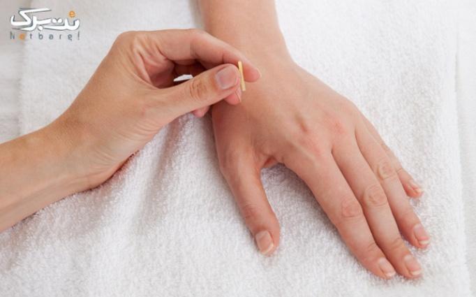 طب سوزنی درمانی یا زیبایی در مطب دکتر علیان