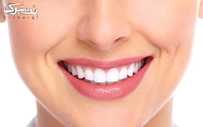 جرم گیری و بروساژ دندان توسط دکتر صدیقی