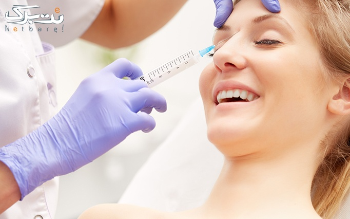 تزریق بوتاکس کنیتوکس در مطب پزشک